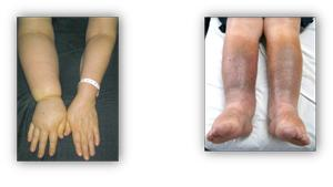 About Lymphedema - Medical Solutions Supplier