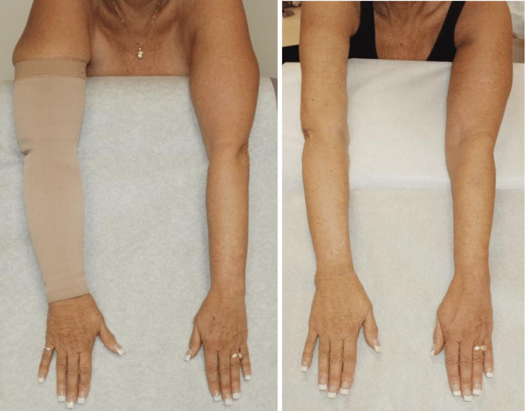 lymphedema arm comparison