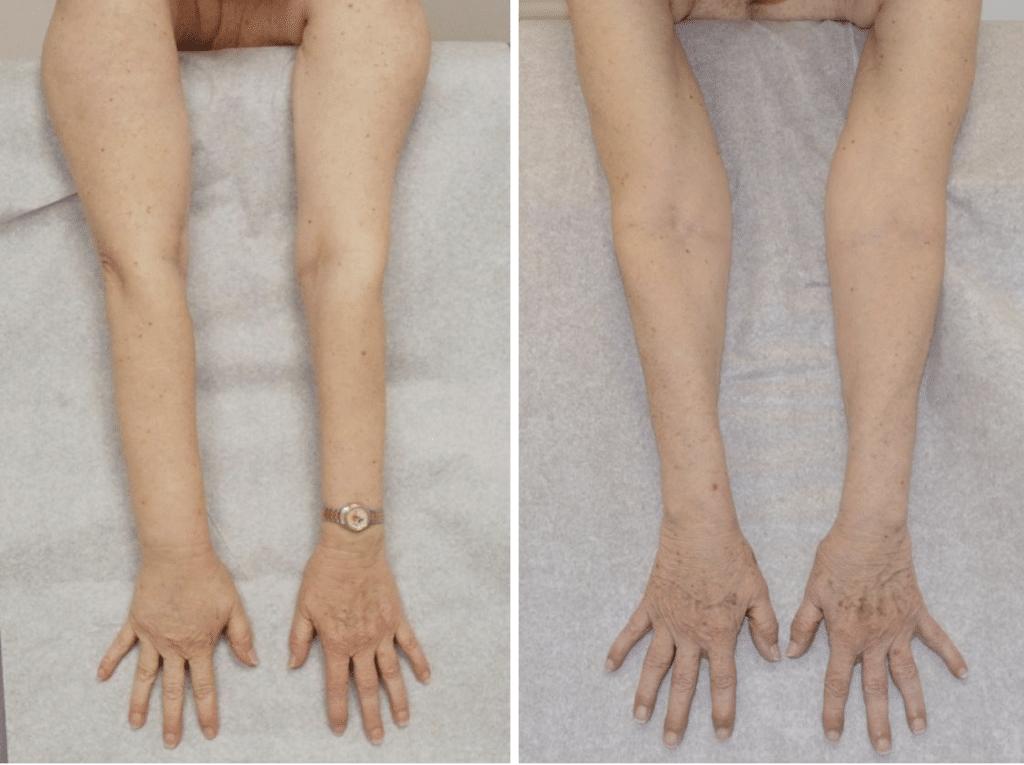 arm comparisons