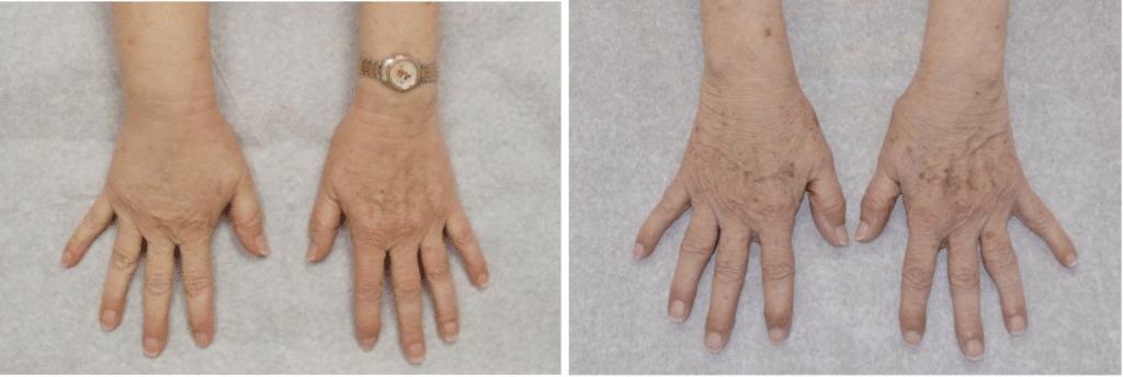 hand comparison